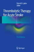 Thrombolytic Therapy ||for Acute Stroke