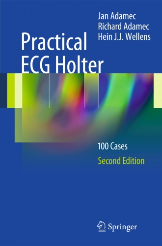Practical ECG Holter