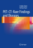 PET-CT: ||Rare Findings and Diseases