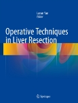 Operative Techniques in Liver Resection